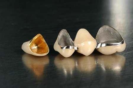 宜宾口腔护理——牙龈病的几种症状