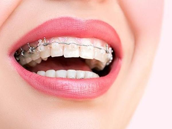 宜宾口腔护理——牙颌畸形需要早期治疗,否则有危害